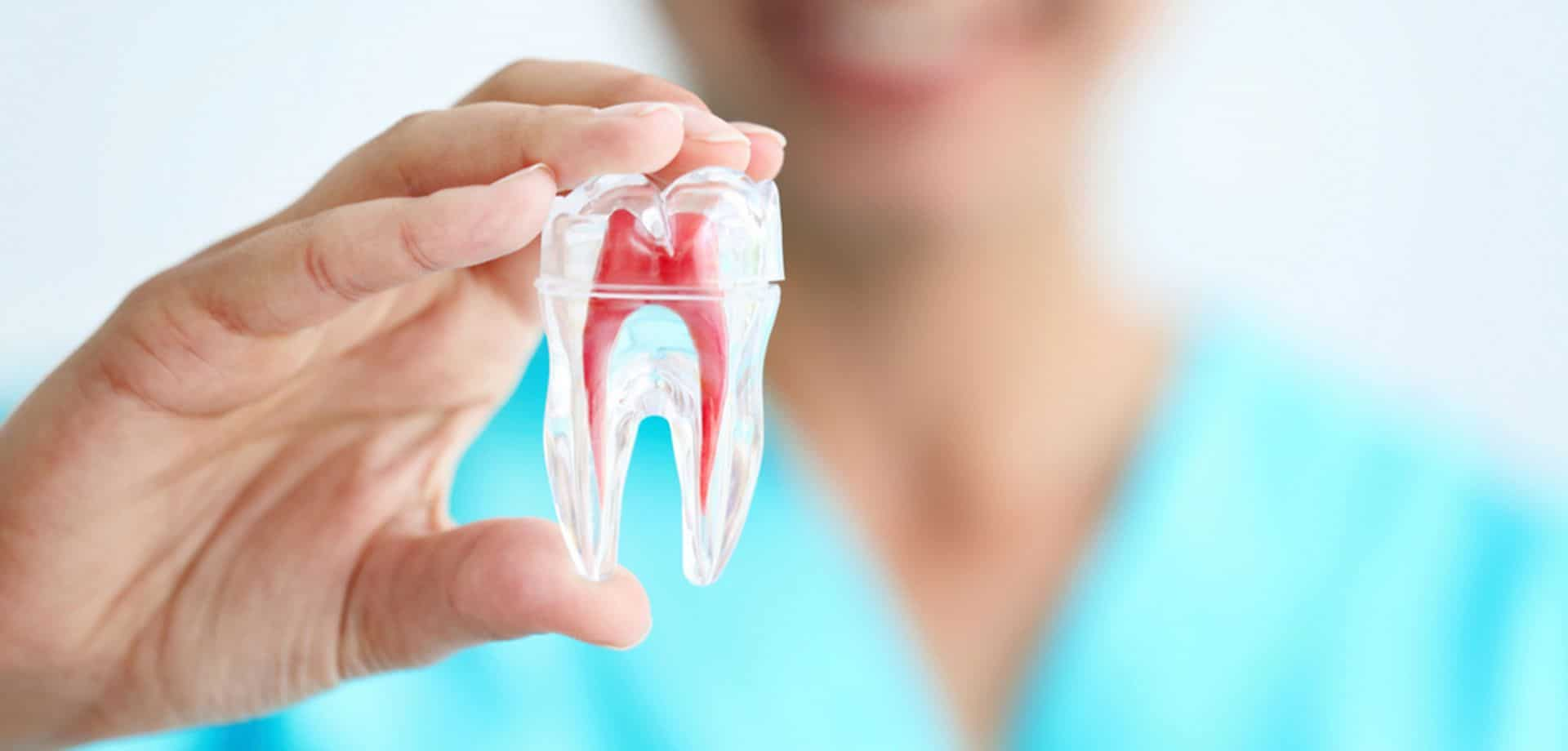 Root-Canal image