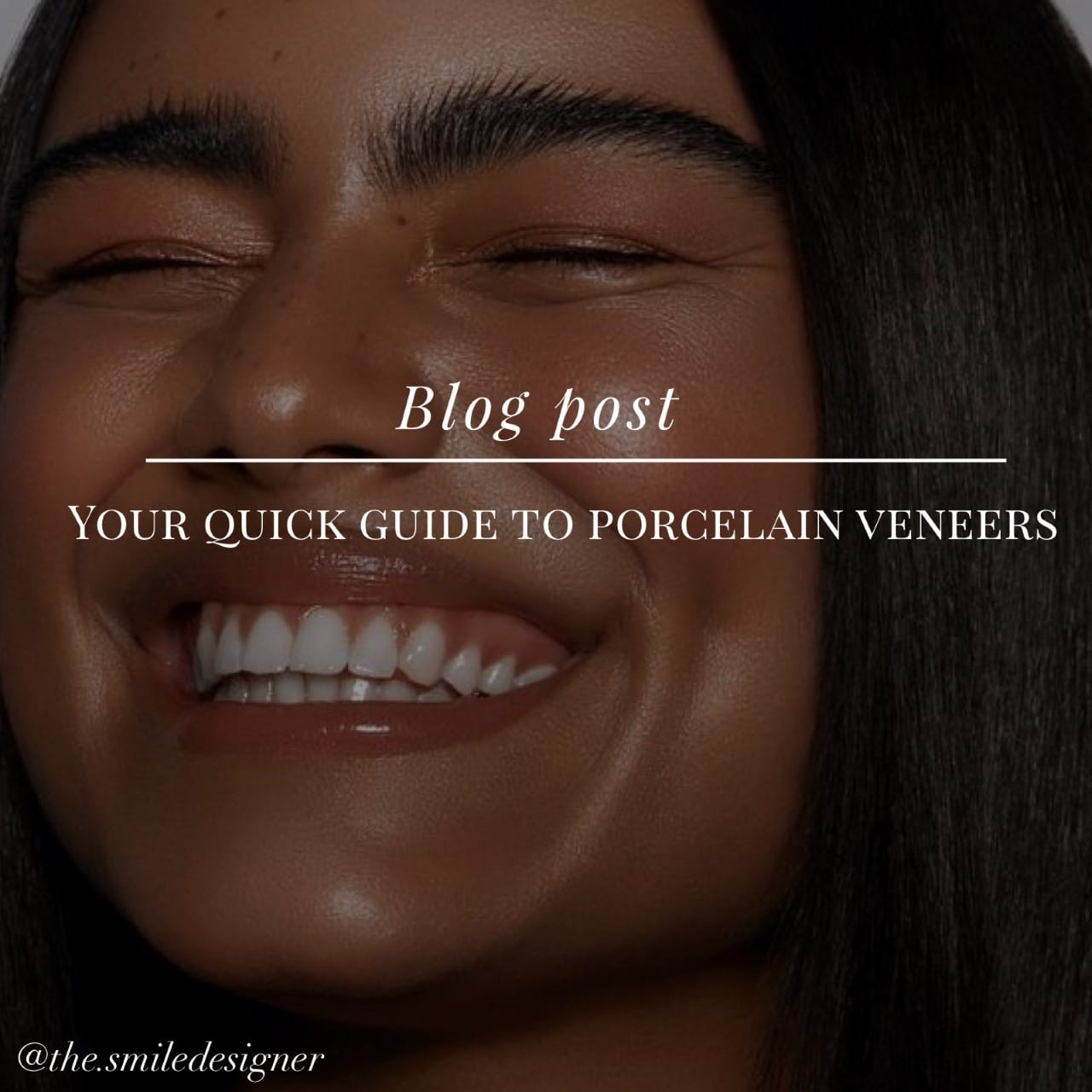 Your Quick Guide to Porcelain Veneers