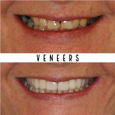 Veneers